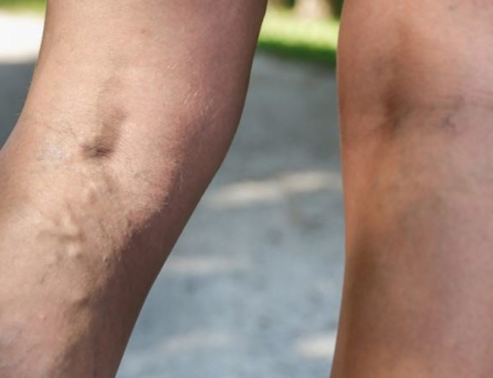 What is the Truth? Disproving 5 Myths About Varicose Veins